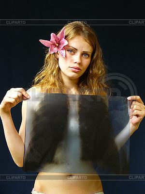 Mädchen mit Röntgenaufnahme in Händen | Foto mit hoher Auflösung |ID 3051535
