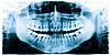 Фото 300 DPI: Зубы рентгеновское изображение