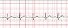 Vektor Cliparts: Elektrokardiogramm