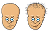 Vector clipart: - patient with bald head and hair