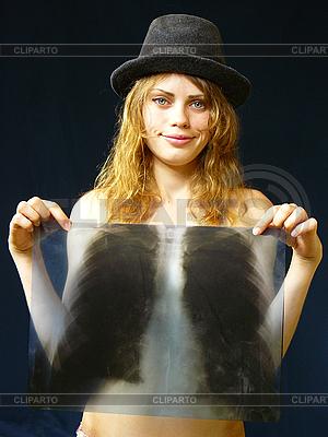 女孩在手中的X光片 | 高分辨率照片 |ID 3051538